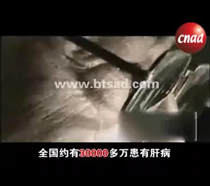 沪洲华西医院肝病医疗广告