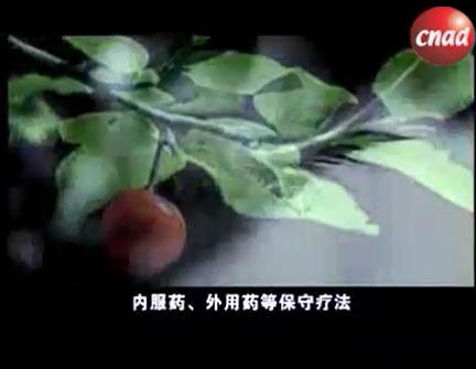 淄博康侯医疗器械有限公司广告片